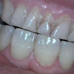 dental_13