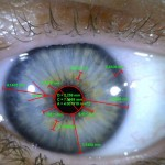 ophthalmology_08