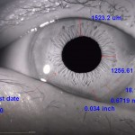 ophthalmology_13